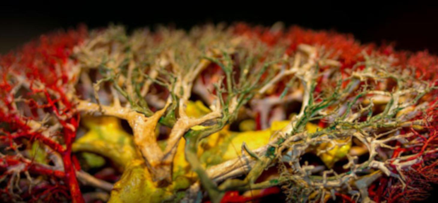 Injection-corrosion d'un rein © Laboratoire d'Anatomie Des Alpes Françaises